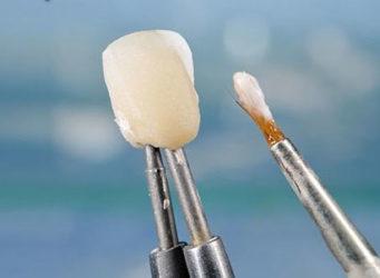 Зубные виниры в Израиле