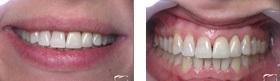 Израиль эстетическая стоматология