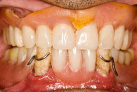 Имплантация зубов «All on 4-6» до