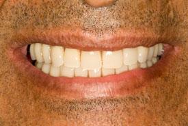 Имплантация зубов «All on 4-6» после