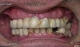 Имплантация зубов в Израиле до