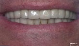 Имплантация зубов в Израиле после