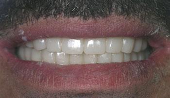 Имплантация зубов за 1 день в Израиле