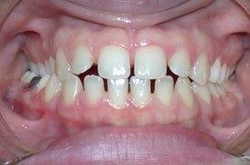 выравнивание зубов в Израиле до