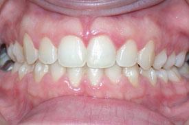 выравнивание зубов в Израиле после