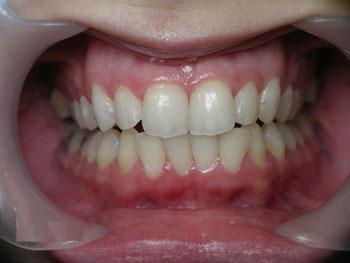 отбеливание зубов в Израиле после