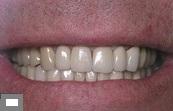 vip стоматология в Израиле
